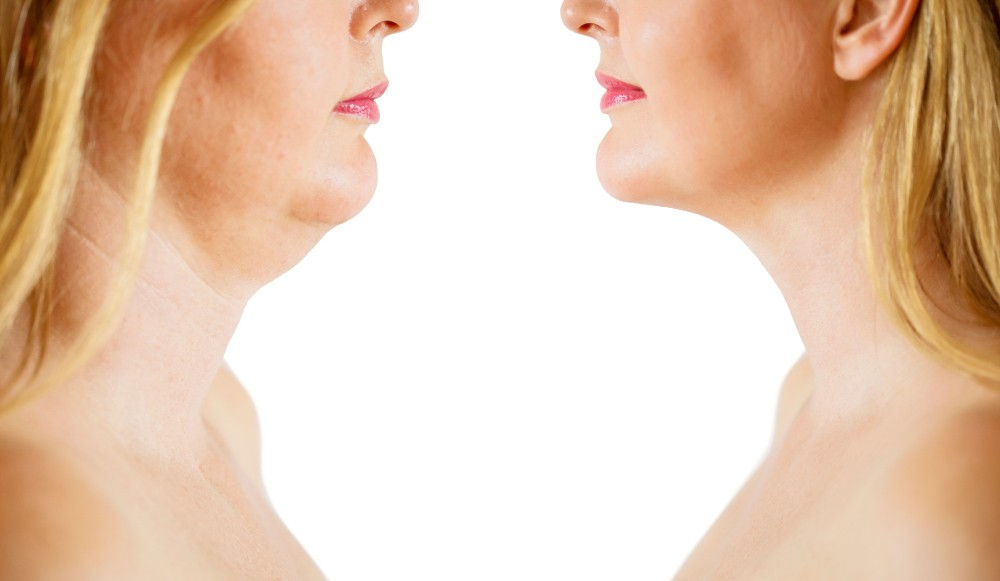 best chin and neck treatments with Kybella and Nova Thread at Skin Works Medical Spa in Torrance and South Bay Los Angeles