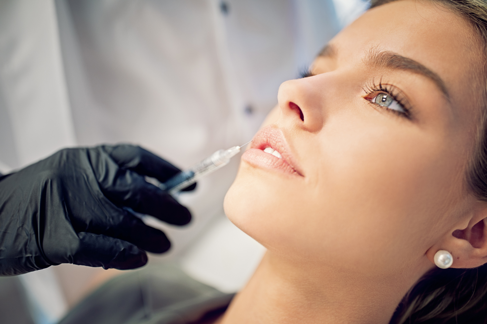 best lip injections at skin works medical spa in torrance and los angeles