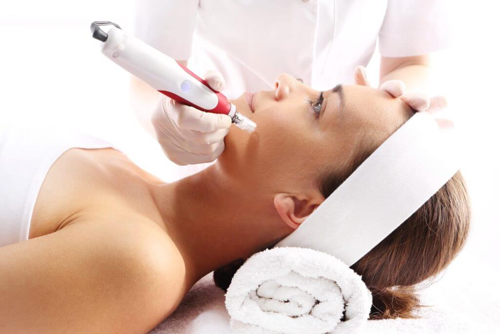 Microneedling at Skin Works Medical Spa