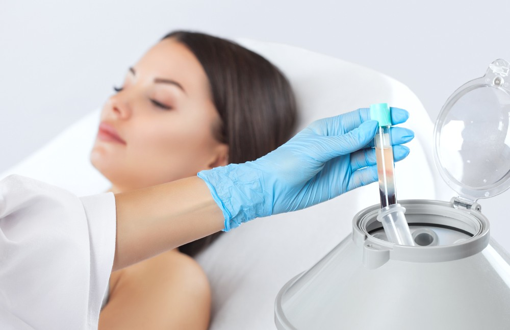 best prp at skin works medical spa in torrance and los angeles