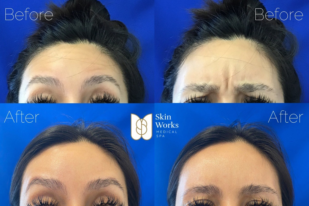 before after botox torrance ca