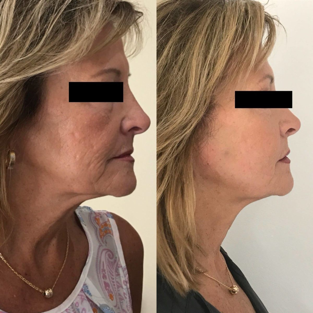 best Non Surgical facelift in Torrance and south bay and long beach