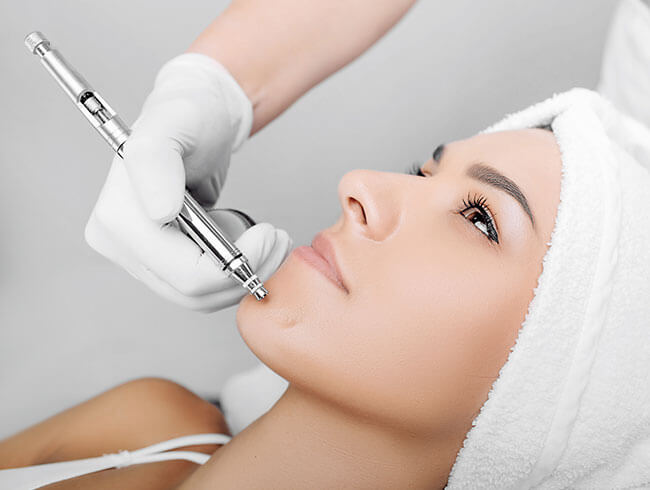 Best VI Peel at Skin works Medical Spa in Torrance and South Bay