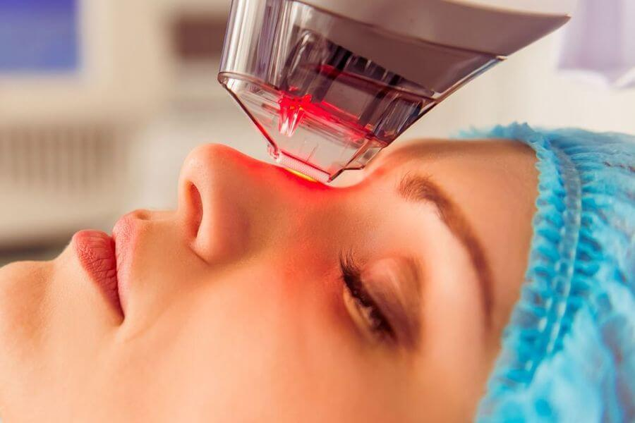 Fractional CO2 Laser Skin Resurfacing at Skin Works Medical Spa in Torrance