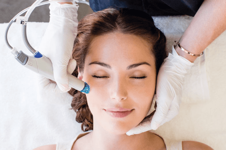 Nlite Laser for best Acne treatment in Torrance and South Bay at Skin Works Medical Spa