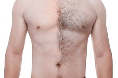 Skin Works Medical Spa is Number one provider of best laser hair removal for men in Torrance and south bay los angeles