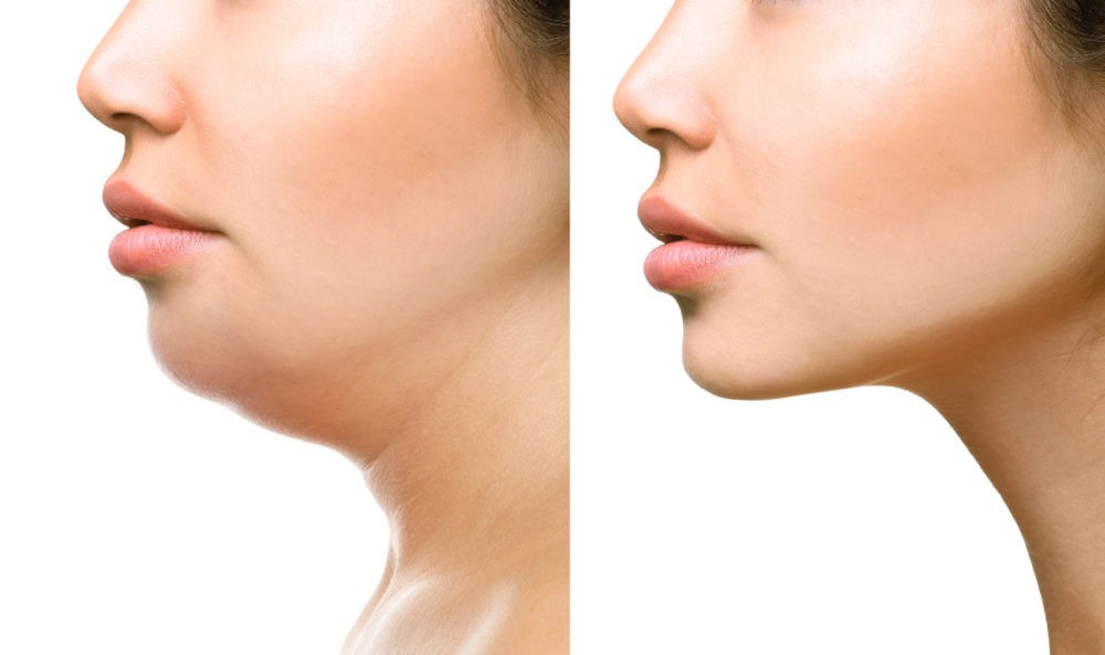 Kybella in Torrance and Palos Verdes