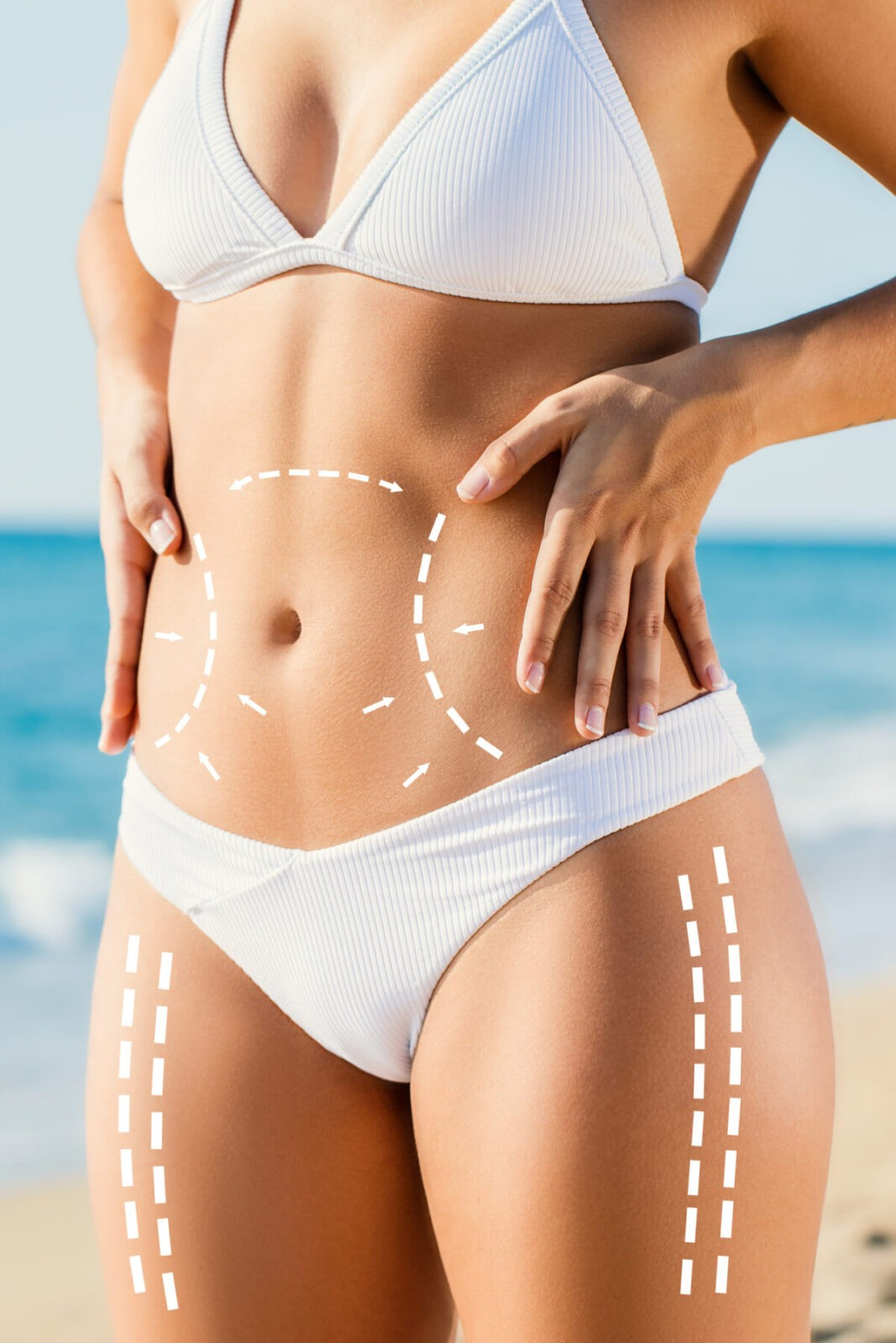 Body Sculpting BBL at Skin Works Medical Spa