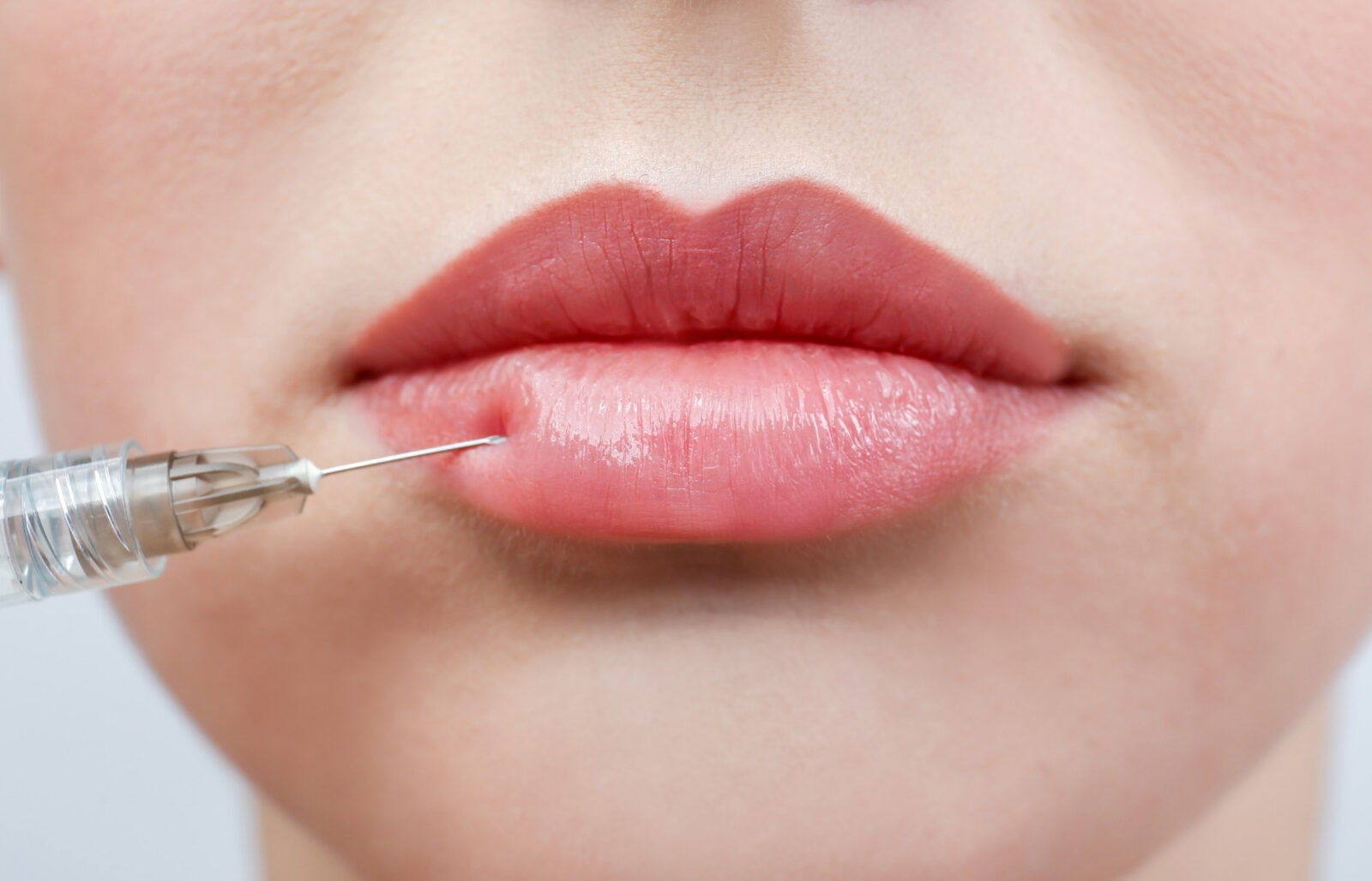 how does lip injection work in palos verdes california