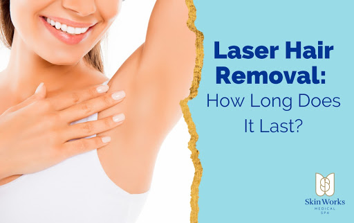 laser hair removal how long does it last?